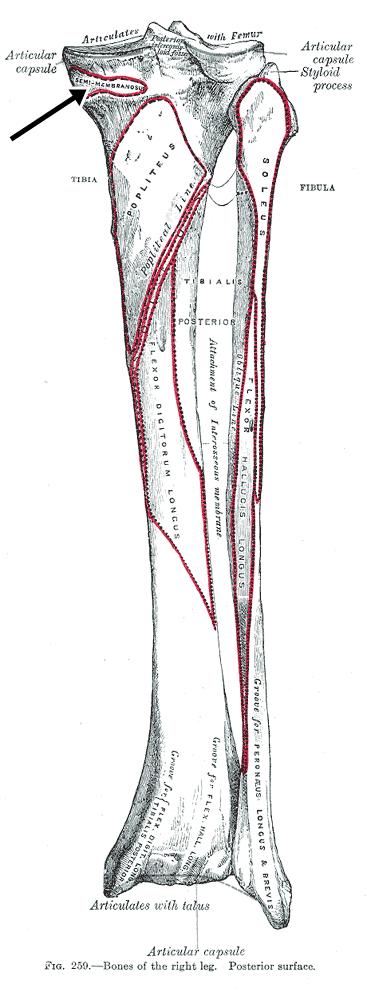 Insercion tibial del musculo semimembranoso