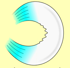 rotura de menisco degenerativa