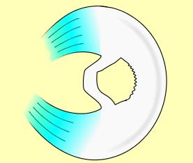 rotura de menisco en asa de cubo
