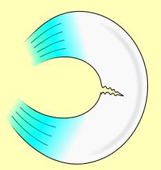 rotura radial de menisco