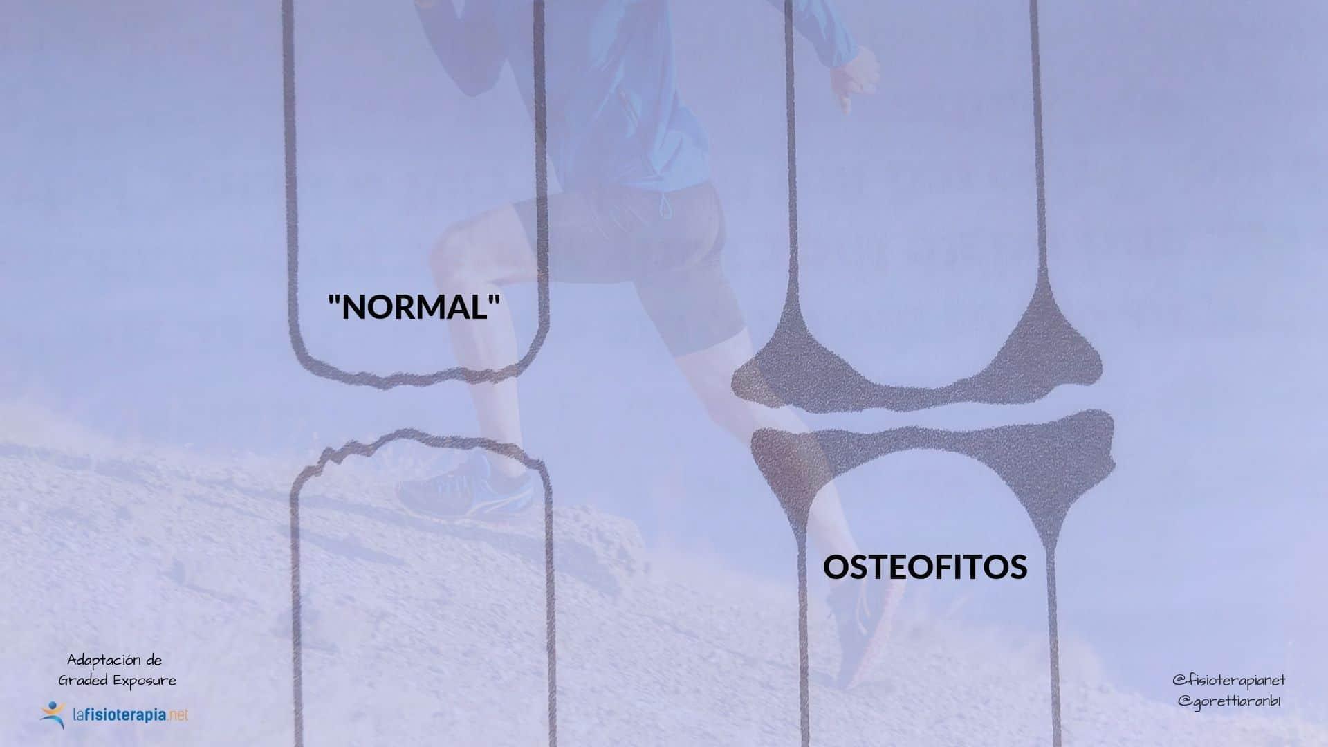 osteofitos no son enfermedad