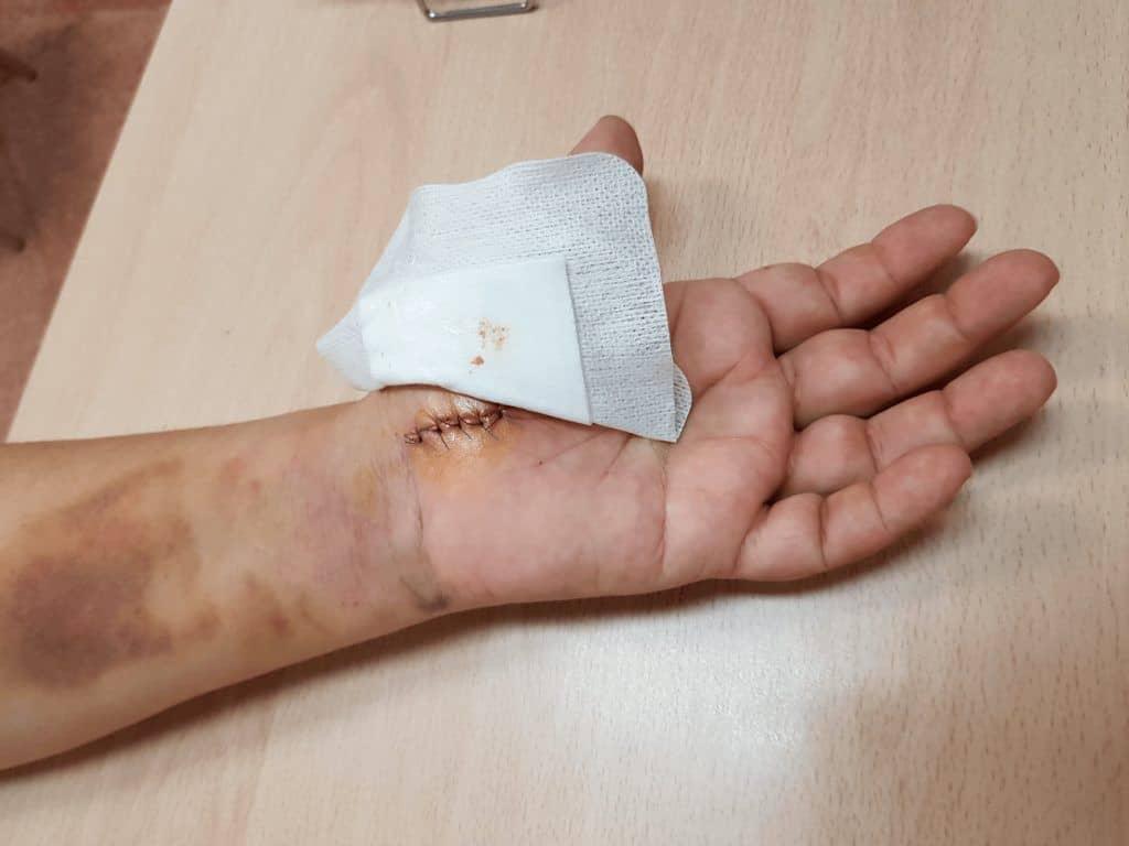 Cirugia abierta en el sindrome del tunel del carpo