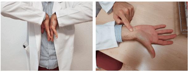 Test de Phalen y test de Tinel para síndrome del túnel carpiano