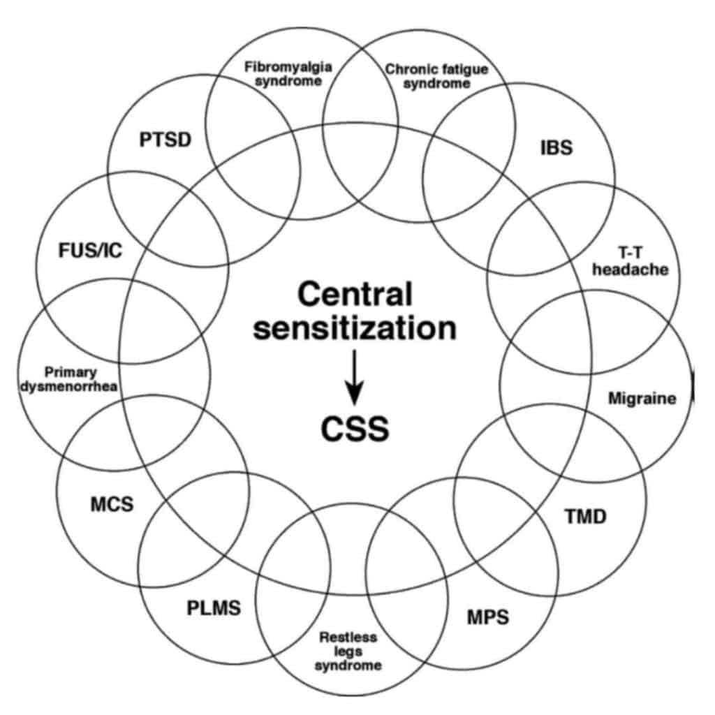 todos los sindromes de sensibilizacion central