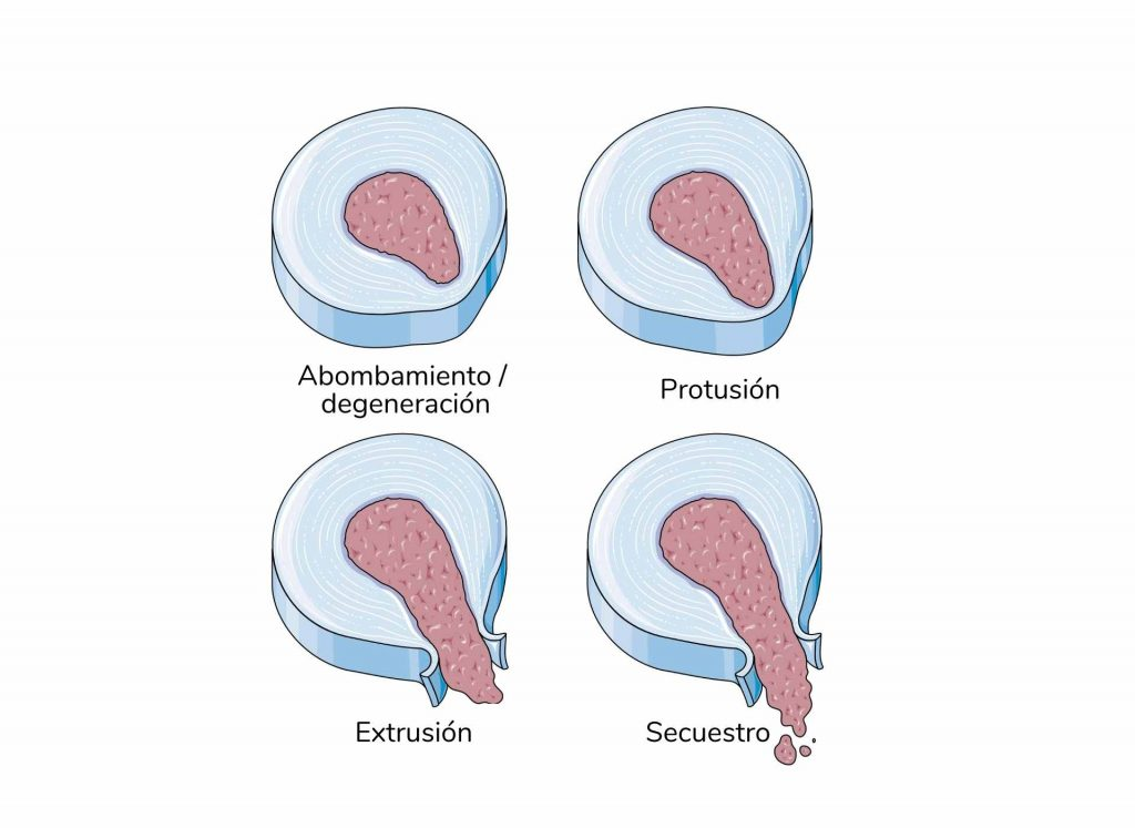Etapas de la hernia discal
